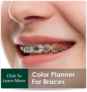 braces colors and what color braces should i choose
