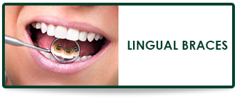 orthodontist braces behind teeth orthodontics in wellington fl