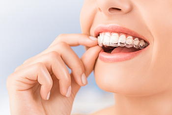 invisalign treatment in wellington fl